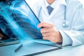 Chest X Ray in Vadodara | Doctor at Doorstep